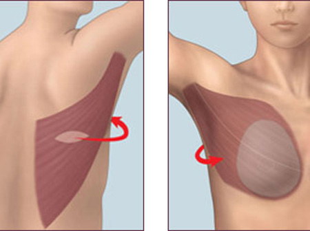 Breast tumor stiffness and metastasis risk linked by molecule's movement